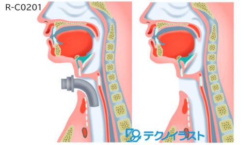 論文用 手術のイラスト(滋賀県立総合病院研究所)