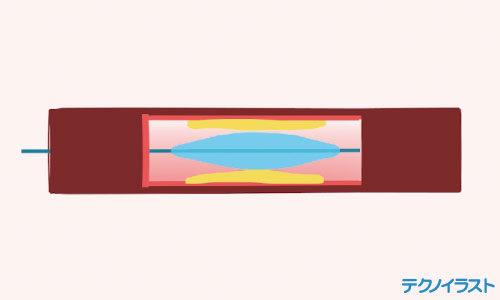 バルーンカテーテル治療の仕組み動画